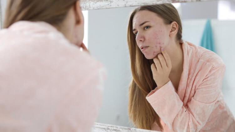 Cicatrices de acné, ¿qué cosas pueden ayudarnos a mejorarlas?